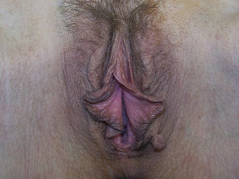 Labiaplasty before 1007121
