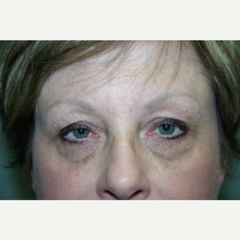 55-64 year old woman treated with Eyelid Surgery before 3339728
