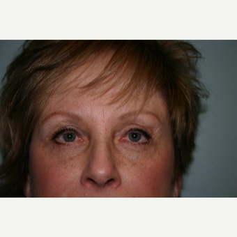 55-64 year old woman treated with Eyelid Surgery after 3339728