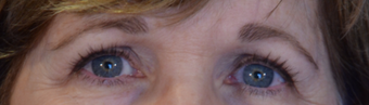 58 year old woman post Eyelid Surgery after 3743913