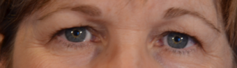 58 year old woman post Eyelid Surgery before 3743913