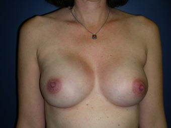 Breast Reconstruction-Direct-to-Implant  after 581313