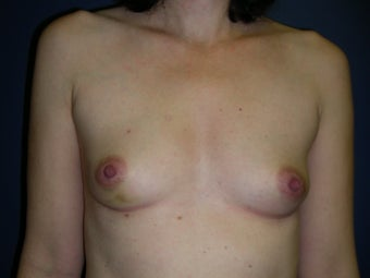 Breast Reconstruction-Direct-to-Implant  before 581313
