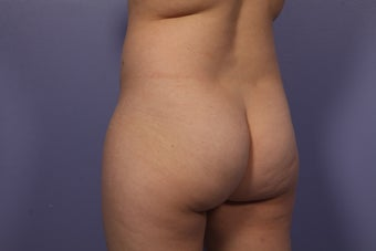 Butt augmentation before 686259