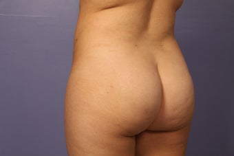 Butt augmentation after 686259