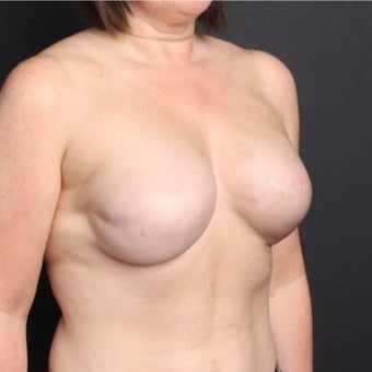 45-54 year old woman treated with Breast Fat Transfer after 2022251