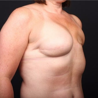 45-54 year old woman treated with Breast Fat Transfer before 2022251