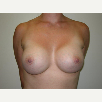 25-34 year old woman treated with Breast Augmentation after 3239234