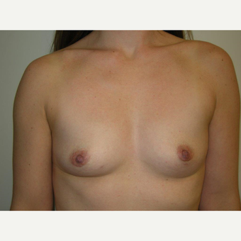 25-34 year old woman treated with Breast Augmentation before 3239234