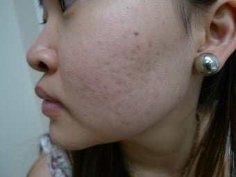 Acne and scars treated with eMatrix after 1440887
