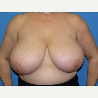 58 year old woman treated with Breast Reduction before 1745391
