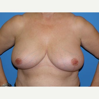 58 year old woman treated with Breast Reduction after 1745391