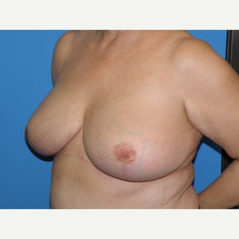 58 year old woman treated with Breast Reduction 1745391
