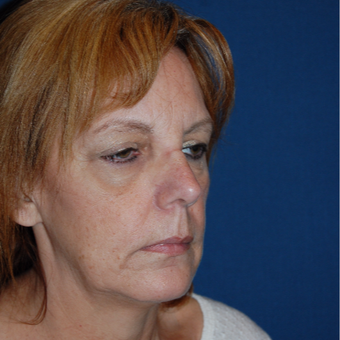 55-64 year old woman treated with Eyelid Surgery before 3400277