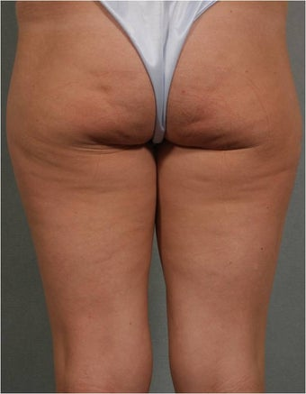 41 year old female treated for Cellulite on the back of her legs and bottocks using Cellulaze technologiy before 795503