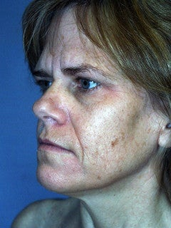 This 52-year-old Woman had a Face Lift, an Endoscopic Brow Lift, and a Lower Blepharoplasty 1235703
