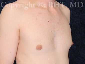 Transgender (M-F) breast augmentation 307469