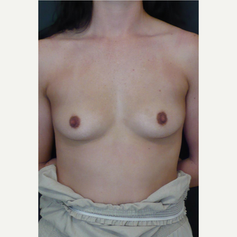 25-34 year old woman treated with Breast Implants before 3731993