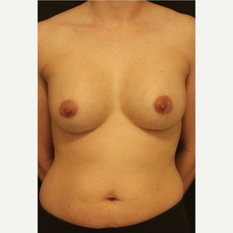 25-34 year old woman treated with Breast Implants after 3731993