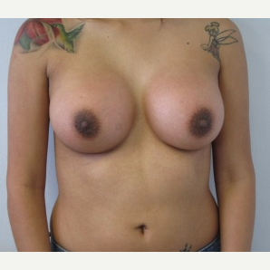 Breast Implant Revision after 3168554