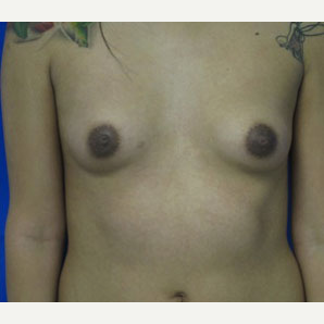 Breast Implant Revision before 3168554