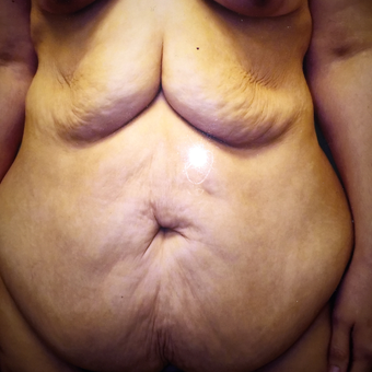 45-54 year old woman treated with Tummy Tuck before 3333326