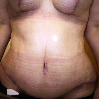 45-54 year old woman treated with Tummy Tuck after 3333326