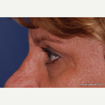 45-54 year old woman treated with Eyelid Surgery after 3624419