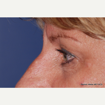 45-54 year old woman treated with Eyelid Surgery before 3624419