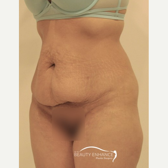 Tummy Tuck before 3010833
