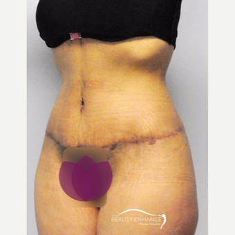 Tummy Tuck after 3010833