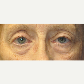 65-74 year old woman treated with Eyelid Surgery before 3849273