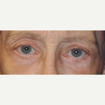 65-74 year old woman treated with Eyelid Surgery after 3849273