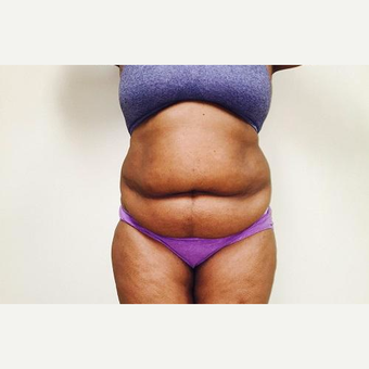 25-34 year old woman treated with Laser Liposuction before 3764309
