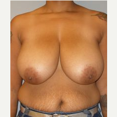 35-44 year old woman treated with Breast Reduction before 3122589