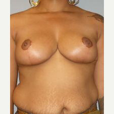 35-44 year old woman treated with Breast Reduction after 3122589