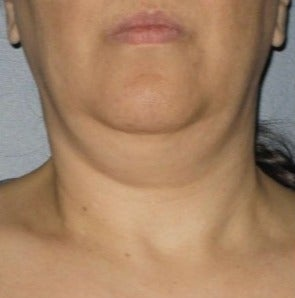 45-54 year old woman treated with Ultherapy