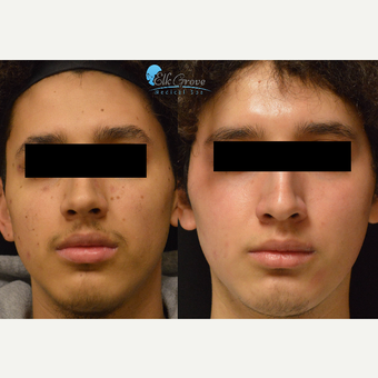 18-24 year old woman treated with Restylane Lyft