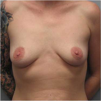 27 year old woman treated with Breast Augmentation before 3468224