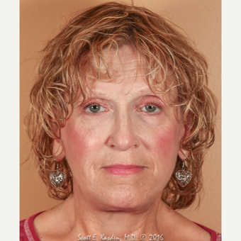 65-74 year old woman treated with SMAS Facelift after 3612141