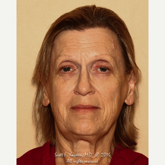65-74 year old woman treated with SMAS Facelift before 3612141