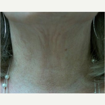 61 year old woman treated with InMode Fractora to the neck after 1983050