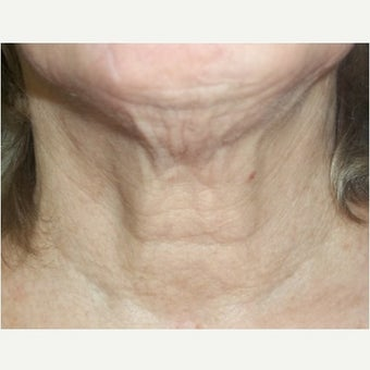 61 year old woman treated with InMode Fractora to the neck before 1983050