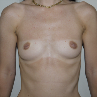 25-34 year old woman treated with Breast Augmentation before 3785079