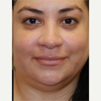 45-54 year old woman treated with Silikon 1000 to her lips. One treatment.