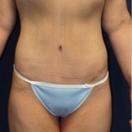 18-24 year old woman treated with Tummy Tuck after 1679390