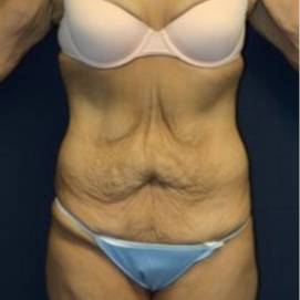 18-24 year old woman treated with Tummy Tuck before 1679390
