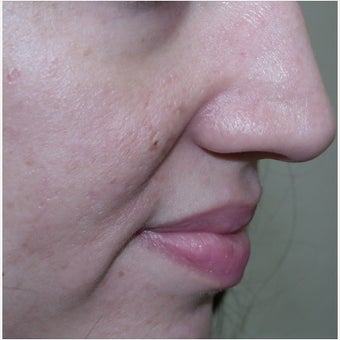InMode Fractora for acne scarring and discoloration on cheeks after 1982743
