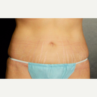 35-44 year old woman treated with Tummy Tuck after 3220296