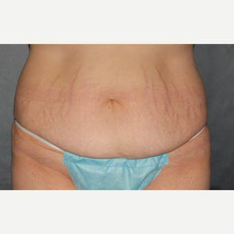 35-44 year old woman treated with Tummy Tuck before 3220296